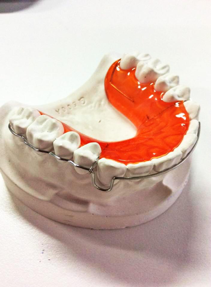Acrylic Bite Plate Appliance Orthodontic Bite Plate